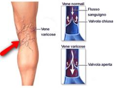 Come tratta varicosity iniziale